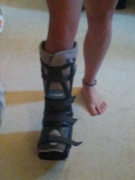 Leg Brace from Achilles Tendon Injury